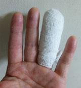 指が痛い・・・